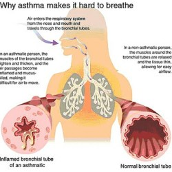 Signs & Symptoms Of Asthma