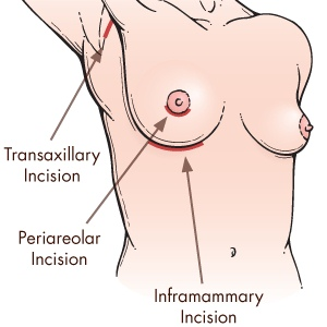Procedures Of Breast Augmentation