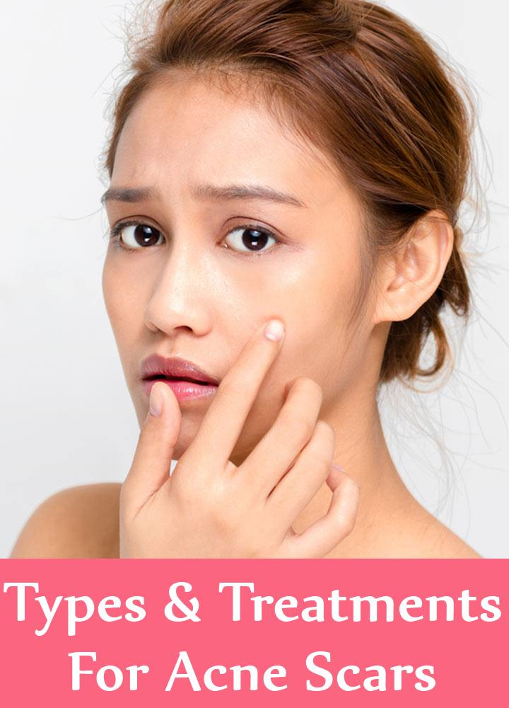 Types And Treatments For Acne Scars