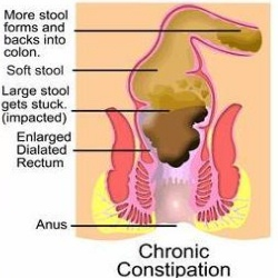 Top 12 Causes Of Constipation