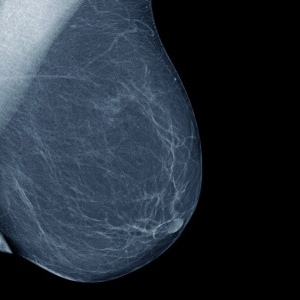 Effective Tools For An Early Detection Of Breast Cancer