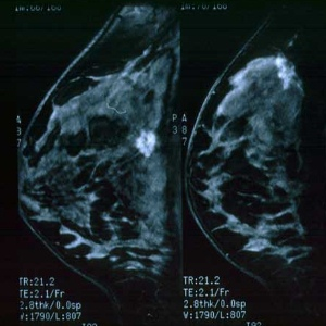 Stage Wise Breast Testing To Detect Cancerous Growth
