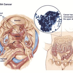 Factors Influencing Ovarian Cancer Prognosis