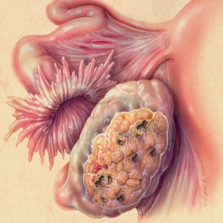Different Stages Of Ovarian Cancer