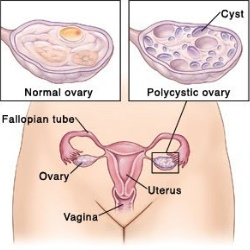 9 Tips To Get Pregnant With PCOS