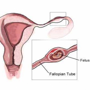 Top 5 Symptoms Of Tubal Pregnancy
