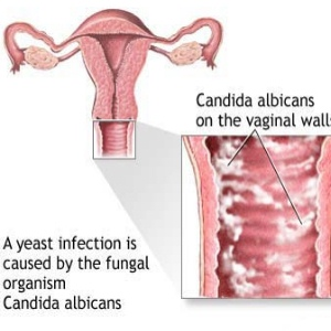 Causes And Symptoms Of Candida Yeast Infection