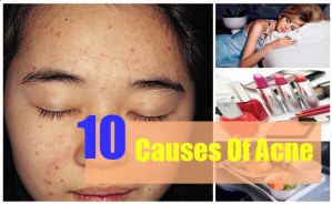 10 Causes Of Acne