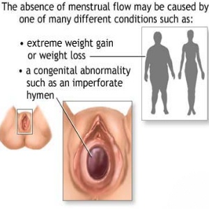 Types Of Menstrual Disorders