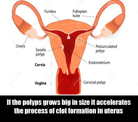 Top 6 Causes Of Blood Clots During Periods | Lady Care Health