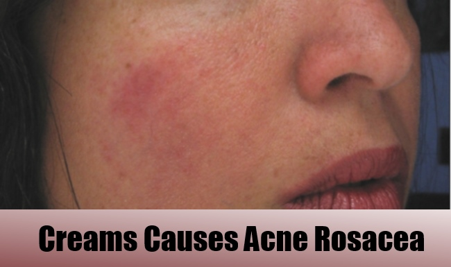 acne-rosacea-cause