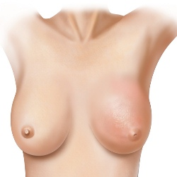 How To Detect Breast Cancer