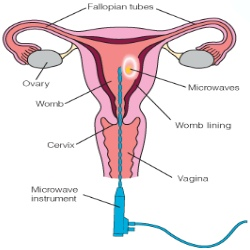 Procedure For Endometrial Ablation