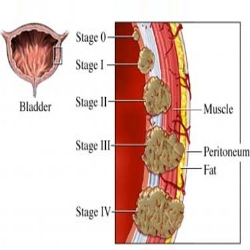 Five Major Symptoms Of Bladder Cancer