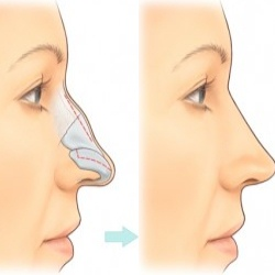 Procedure Of Rhinoplasty Surgery