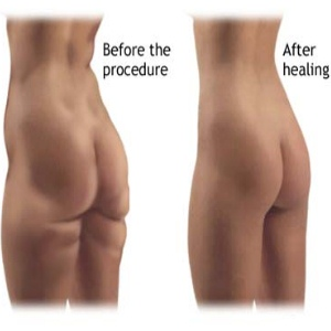 Procedure And Complications Of Liposuction Surgery