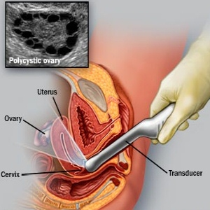 Post Menopausal Bleeding Causes And Treatments