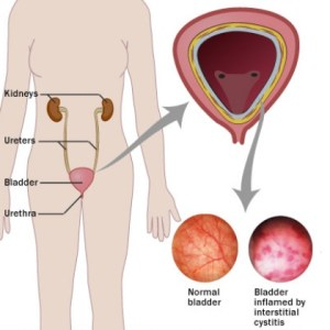 Signs And Symptoms Of Cystitis
