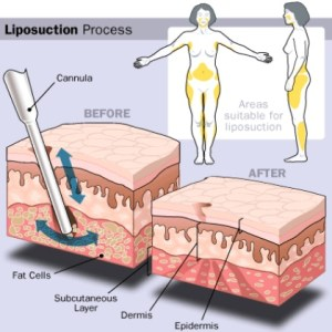 Risks And Benefits Of Stomach Liposuction