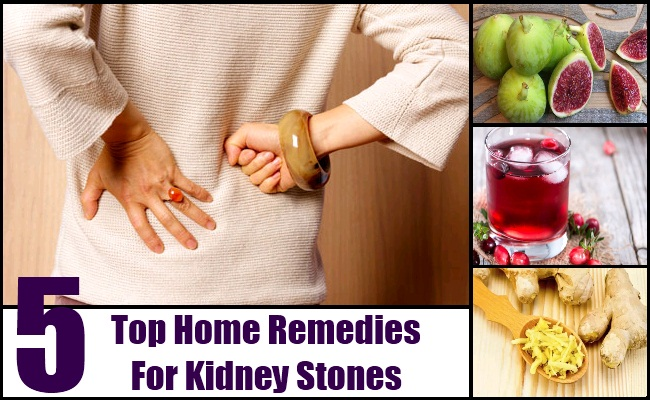 Top 5 Home Remedies For Kidney Stones Natural Treatments Cure For Kidney Stones Lady Care Health
