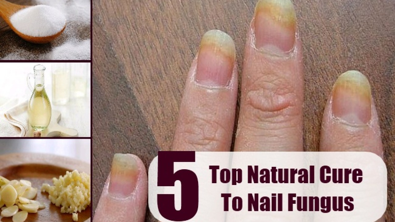 Top 5 Natural Cure For Nail Fungus - How To Treat Nail Fungus With ...