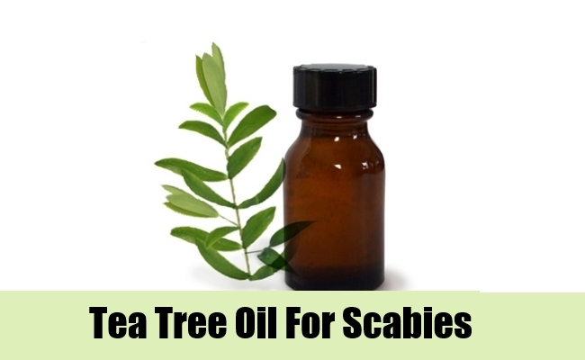 8 Home Remedies For Scabies Natural Treatments Amp Cure