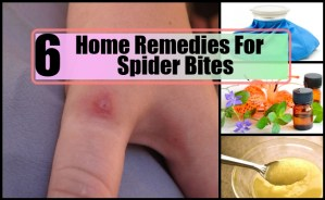 Top Home Remedies For Spider Bites