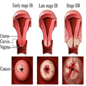 cervical cancer stage1