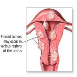 fibroid cyst