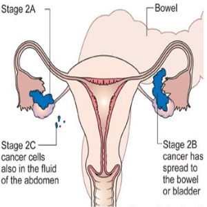 ovary cancer stage 2