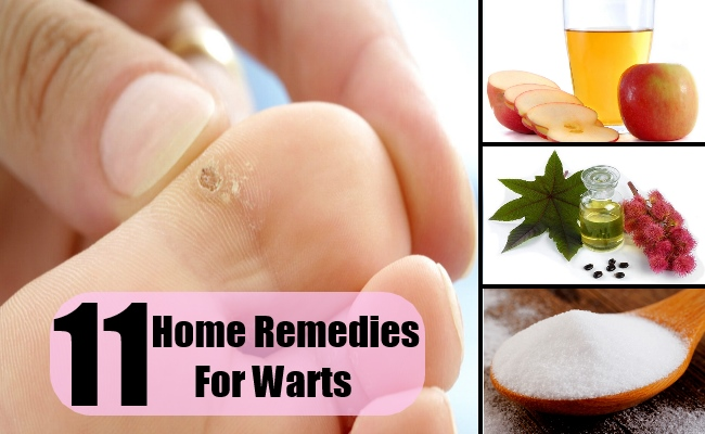 11 Home Remedies For Warts