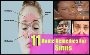 Effective Home Remedies For Sinus
