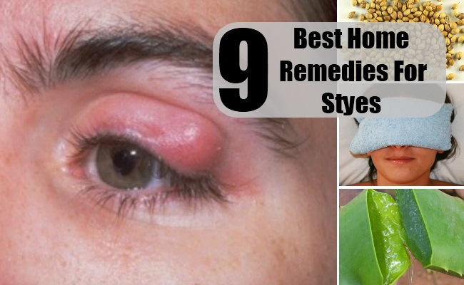 9 Best Home Remedies For Styes Natural Cure Herbal Treatment For