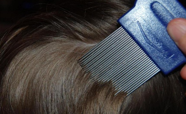 Use Combs Designed To Remove Lice