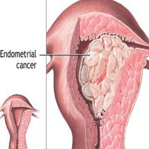Endometrial Uterine Cancer