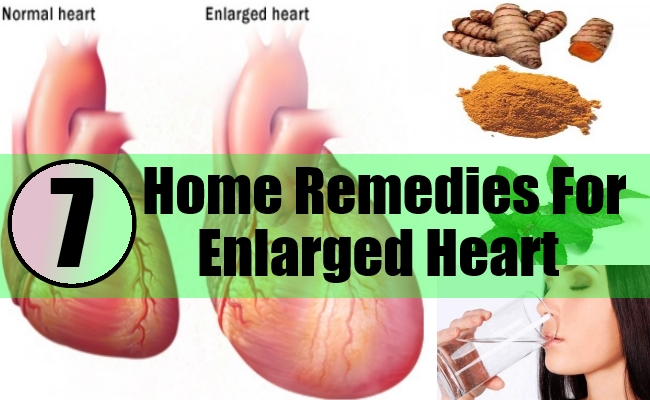 Home Remedies For Enlarged Heart