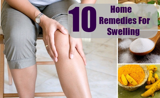 Home Remedies For Swelling