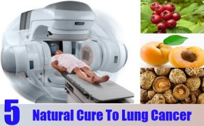 Natural Cure To Lung Cancer