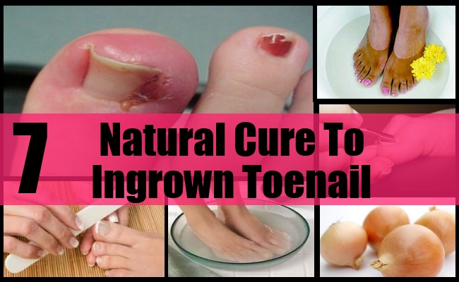 7 Best Natural Cures For Ingrown Toenail - How To Cure Ingrown ...