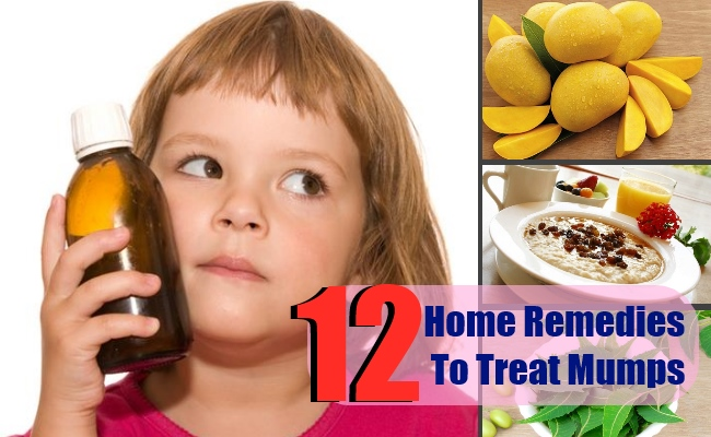 12 Top Home Remedies To Treat Mumps