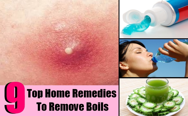 9 Top Home Remedies To Remove Boils