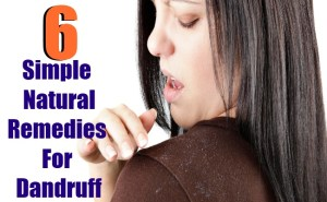 6 Simple Natural Remedies For Dandruff