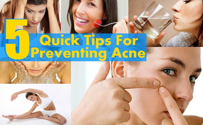 Tips For Preventing Acne