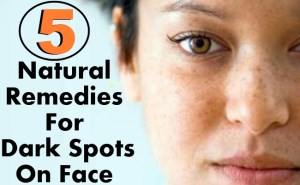5 Natural Remedies For Dark Spots On Face