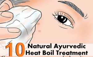 10 Effective Natural Ayurvedic Heat Boil Treatment