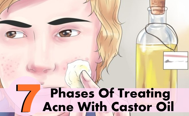 7 Phases Of Treating Acne With Castor Oil