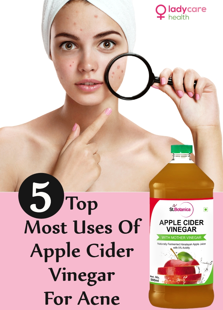 Top Most Uses Of Apple Cider Vinegar For Acne