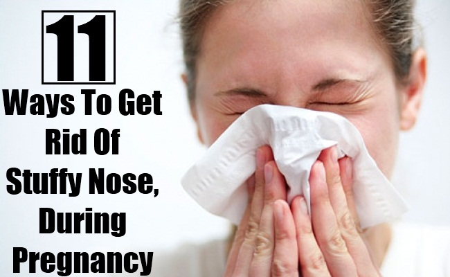 10 Ways To Get Rid Of Stuffy Nose, During Pregnancy