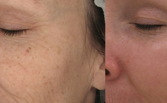 Fractional Laser Rejuvenation