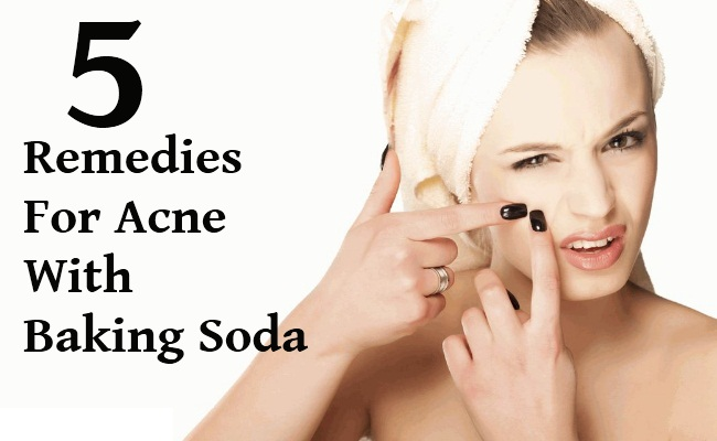 5 Amazing Remedies For Acne With Baking Soda